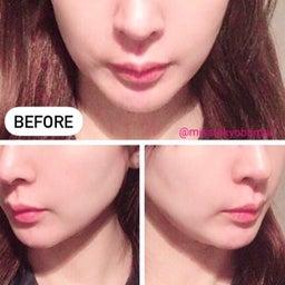 画像 3ケ月恒例!湘南美容外科でサーマタイトニングを受けてきました。 の記事より 2つ目