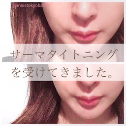 画像 3ケ月恒例!湘南美容外科でサーマタイトニングを受けてきました。 の記事より 1つ目