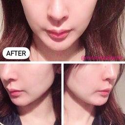 画像 3ケ月恒例!湘南美容外科でサーマタイトニングを受けてきました。 の記事より 3つ目