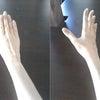 手術から1年、私の変化の画像