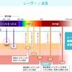 光治療とレーザー治療の違いについて。。