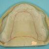 上顎全部床義歯、下顎両側遊離端義歯の症例(No.172)の画像