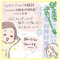 画像 小児顔面神経麻痺の体験談が紹介されました!【ベビーカレンダー】 の記事より 2つ目