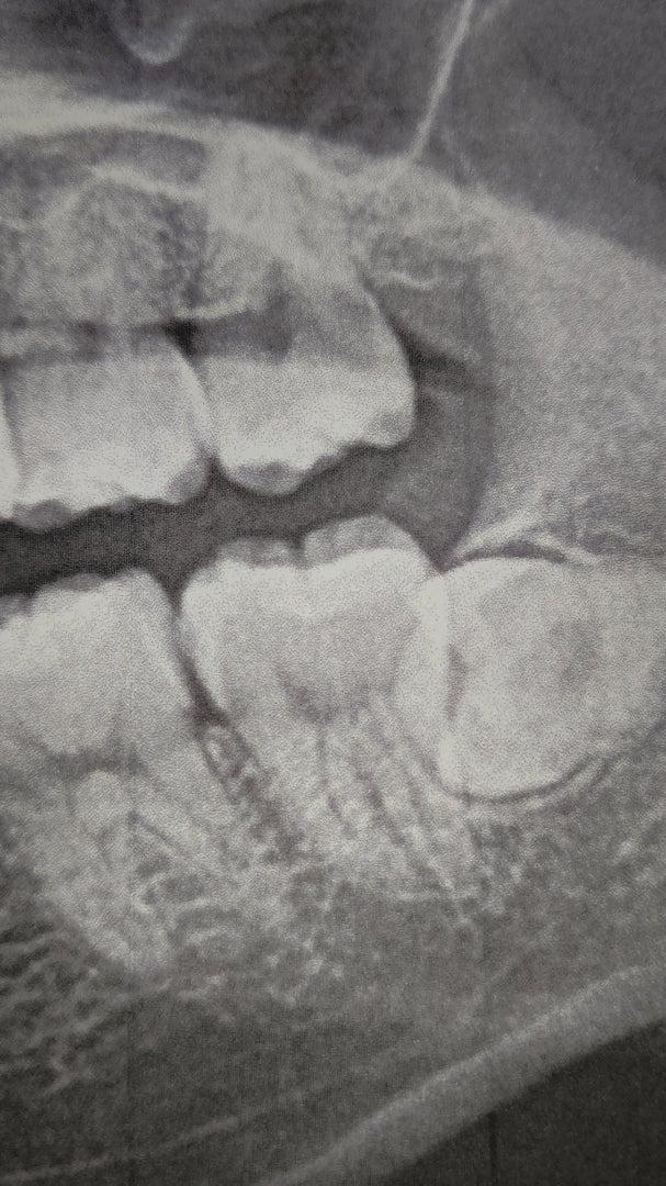 虫歯の治療~虫歯は必ず削る⁉️~