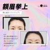 <額眉挙上>最近、瞼のたるみが気になる方!瞼のたるみを改善する方法は目の手術だけではありません!の画像