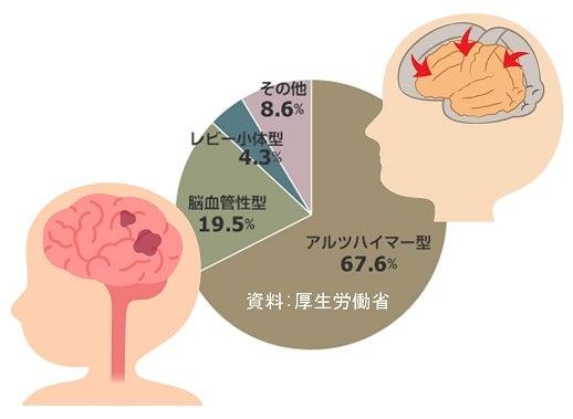 認知症・アルツハイマー型認知症・脳血管症認知症
