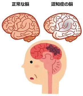 脳血管症認知症・認知症