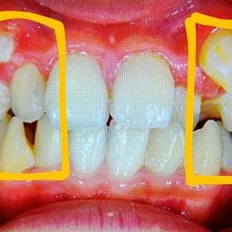 画像 八重歯ってなぜ良くないの? の記事より 4つ目
