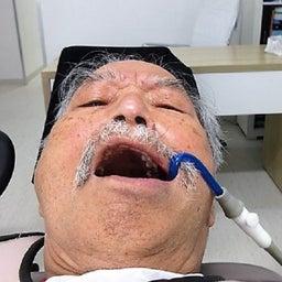 画像 ≪歯の治療を始めました。その7≫ の記事より 3つ目