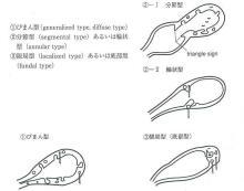 肝胆膵の役割とよくある疾患 - takanawa.jcho.go.jp