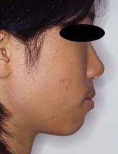 徳島の矯正歯科治療専門医院-初診時横顔拡大