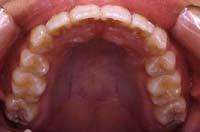 徳島の矯正歯科治療専門医院-術後上顎