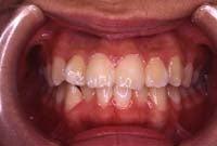 徳島の矯正歯科治療専門医院-初診時正面
