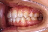 徳島の矯正歯科治療専門医院-術後左側