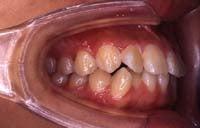 徳島の矯正歯科治療専門医院-初診時右側