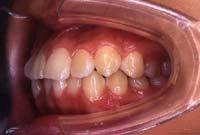 徳島の矯正歯科治療専門医院-初診時左側