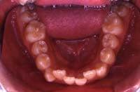徳島の矯正歯科治療専門医院-初診時下顎